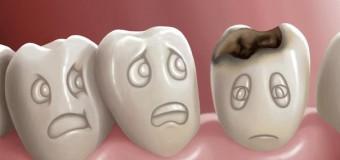 Nhổ răng khôn mọc ngầm – wisdom tooth removal partial bony
