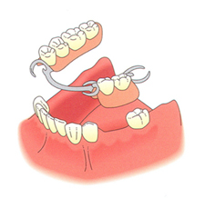 partial-denture1