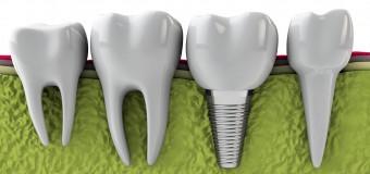 Implant Nha Khoa Uy Tín Quận 10 – Nha Khoa ADC