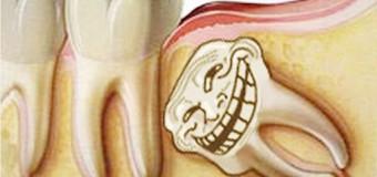 Nguyên Nhân Cần Nhổ Răng Số 8?