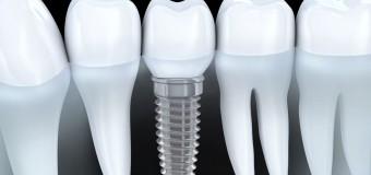 Lịch Sử Về Implant Nha Khoa