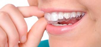 Quy Trình Niềng Răng Không Mắc Cài Ở Q.10 – Nha Khoa ADC
