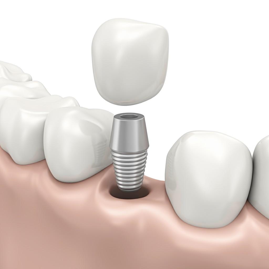 Những Lưu Ý Sau Khi Cấy Implant – Nha Khoa Quận 10