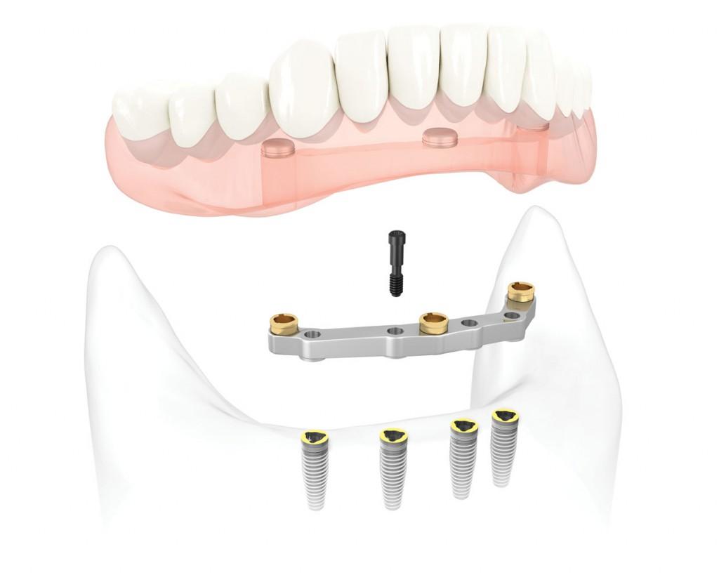 Mini Implant Là Gì? - Nha Khoa ADC