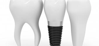 Mini Implant Là Gì? – Nha Khoa ADC